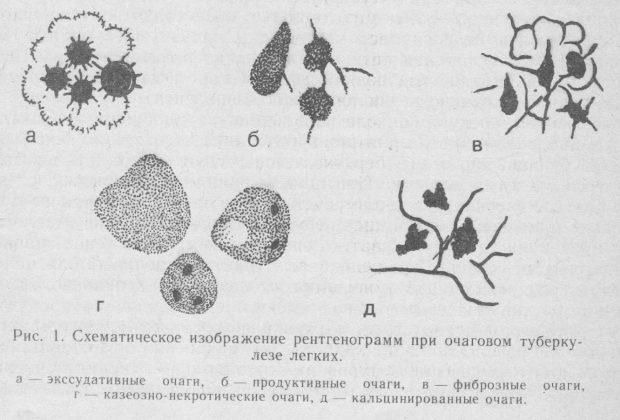 Схематическое изображение рентгенограмм при очаговом туберкулезе легких