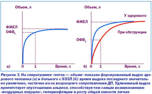 Спирометрия