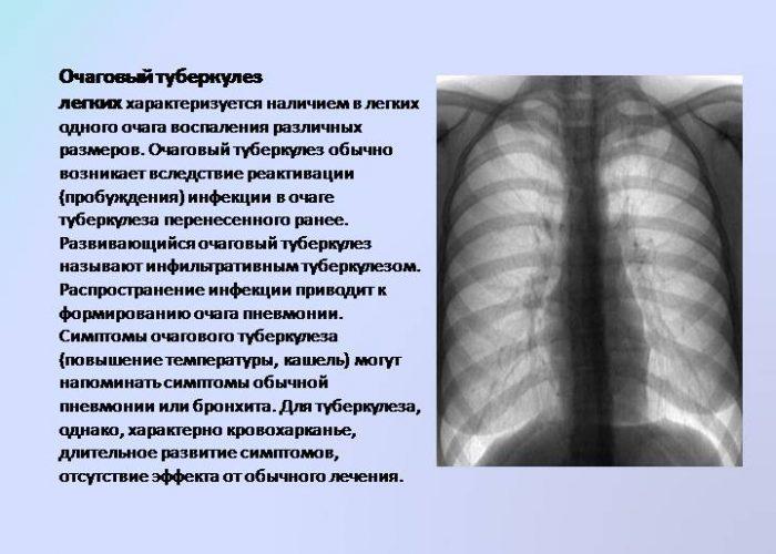 Туберкулезные очаги легких