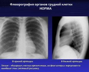 Условия проведения флюорографии