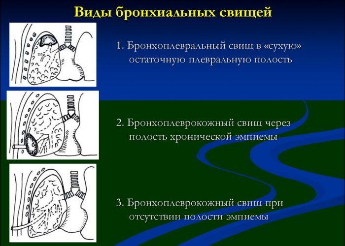 Виды бронхиальных свищей