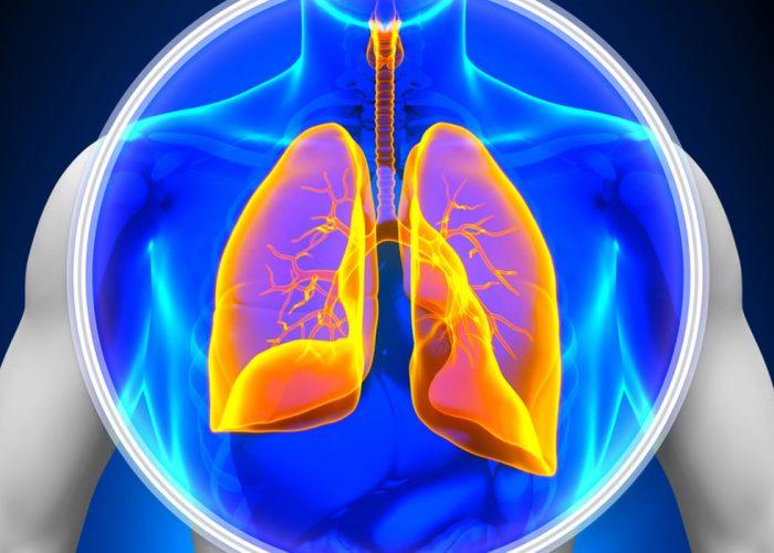 Воспалительные заболевания легких