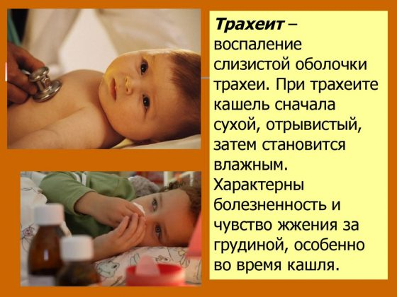 Аллергический трахеит у детей