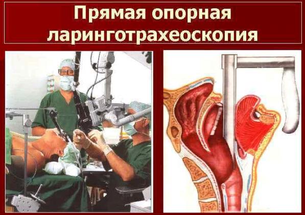Ларинготрахеоскопия