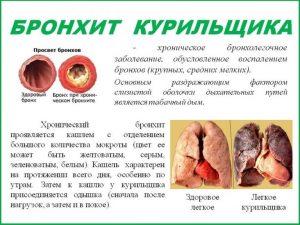 Мокрота у курящих