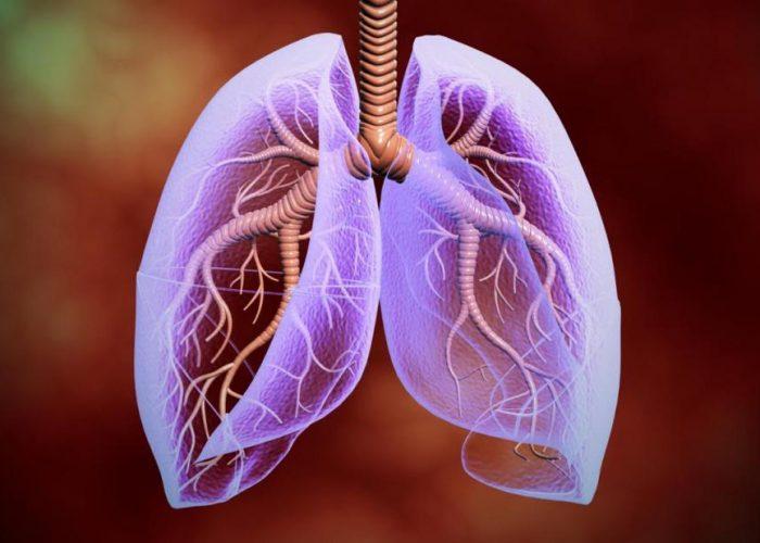 Обструктивная болезнь лёгких