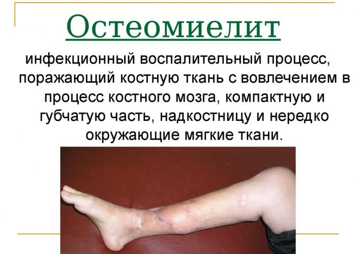 Остеомиелит
