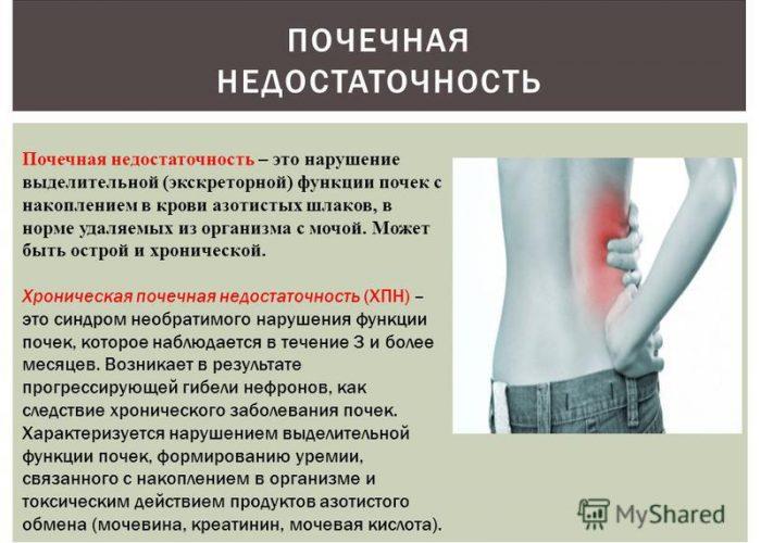 Пациенты, страдающие почечной недостаточностью