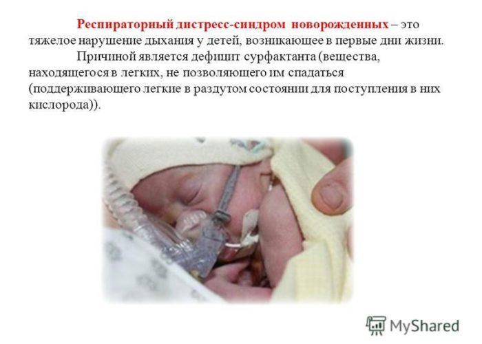Расстройство дыхания у новорожденных