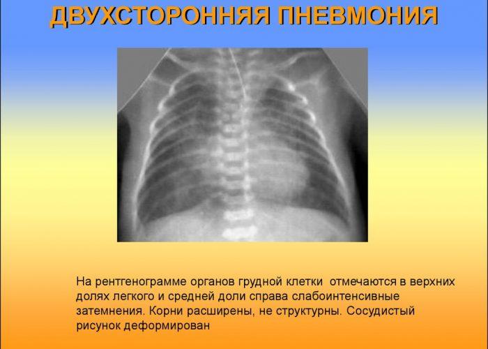 Двусторонняя пневмония