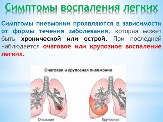 Симптомы воспаления легких