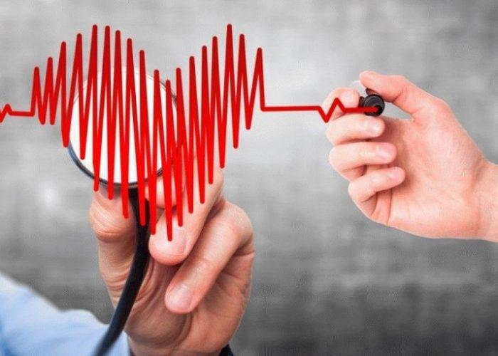 Учащение сердечного ритма
