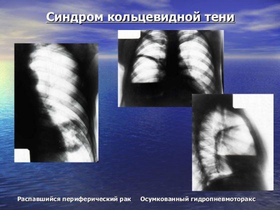 Синдром кольцевидной тени