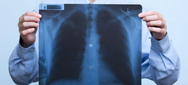 Затмение в легких на рентгене