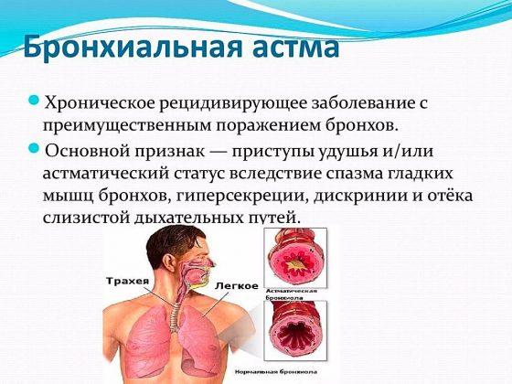 бронхиальная астма что это