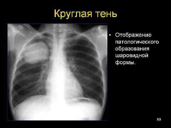 синдром круглой тени в легких