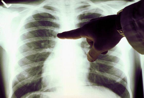 увеличение лимфатических узлов на рентгене